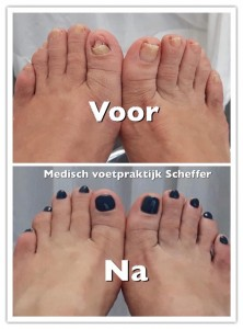 nagelr